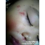 子供の病気・怪我