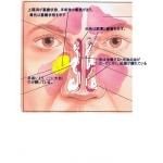 鼻炎・慢性鼻炎治療