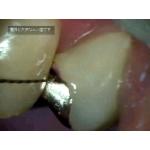 顕微鏡歯科・マイクロスコープ